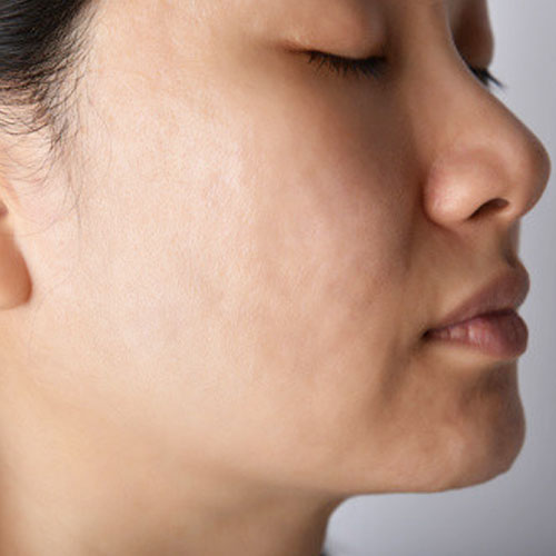 After-Laser-Acne-Treatment