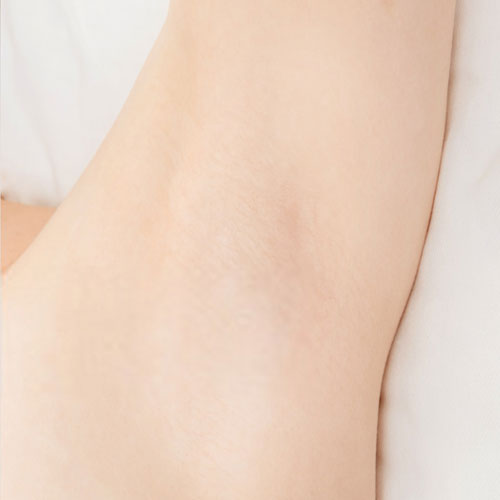 After-Laser-Hair-Removal
