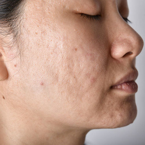 Before-Laser-Acne-Treatment