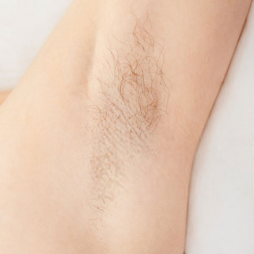 Before-Laser-Hair-Removal