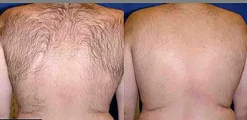 Laser for Permanent Hair Removal